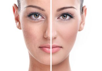 skin treatment in Delhi - vivaesthetique