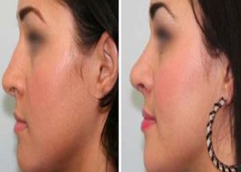 face lift surgery in Delhi - vivaesthetique