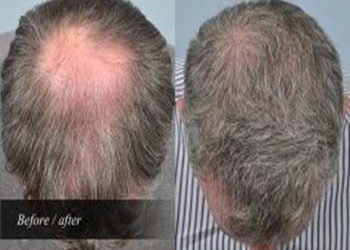 vivaesthetique hair treatment after before