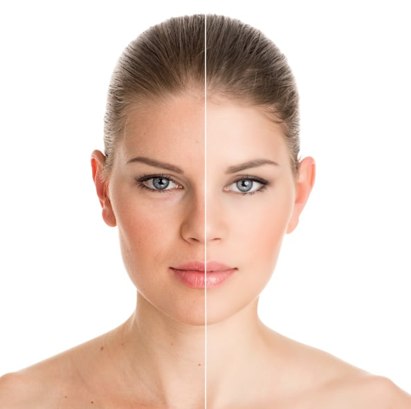 skin treatment in delhi at low cost vivaesthetique Facial Rejuvenation