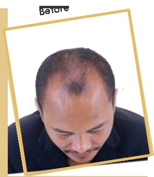 hair transplant in India | hair transplant in Delhi - vivaesthetique
